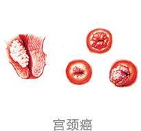 出血是不是宫颈癌_2,阴道出血:异常的阴道出血是宫颈癌最常见的首发症状.
