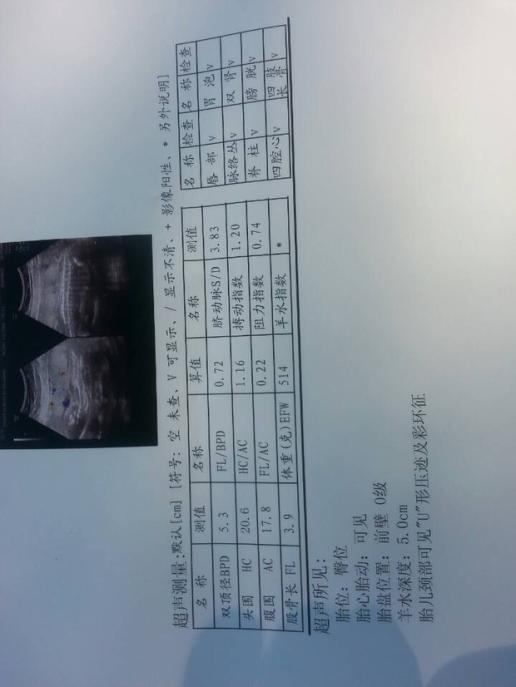 根据彩超单子如何能看胎儿性别  br>