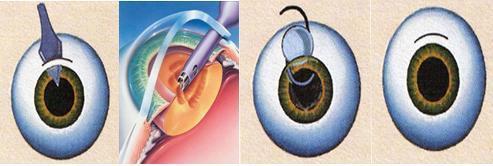 叠手术衣步骤图片