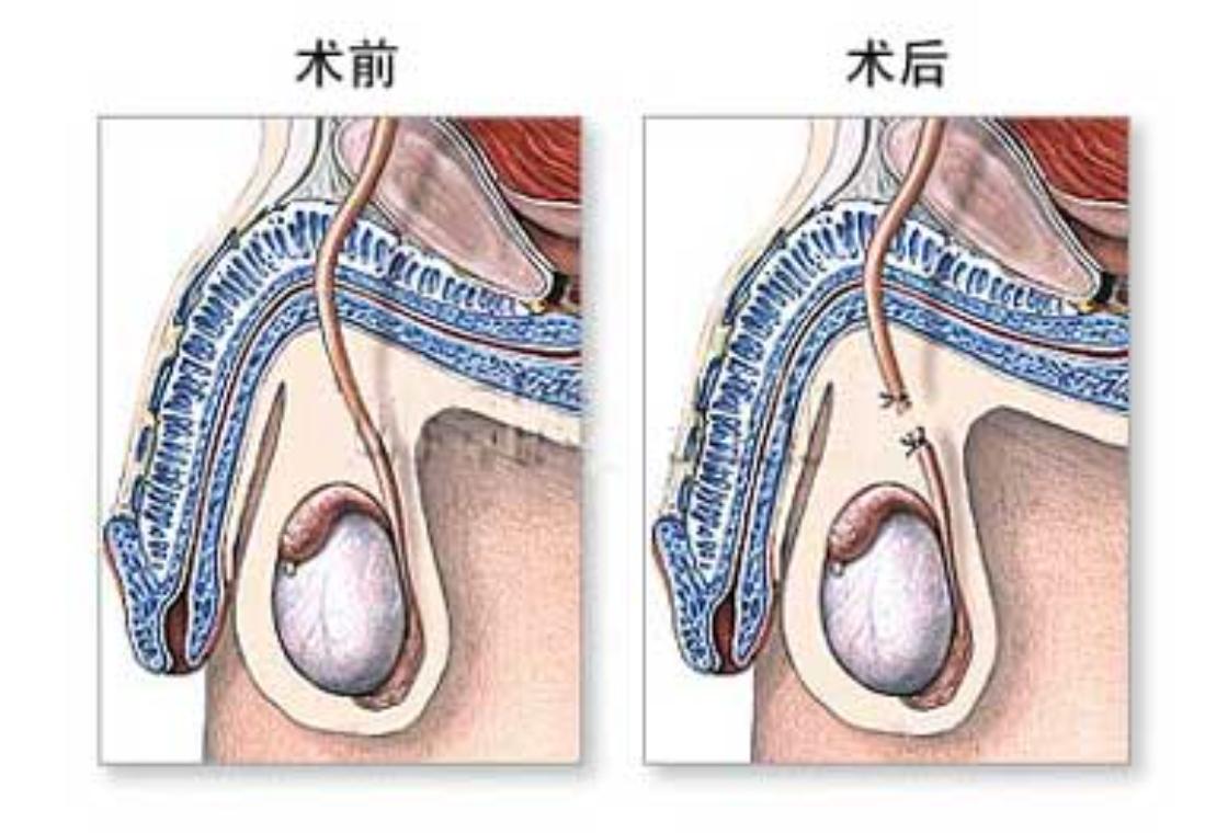 奶子白腚精液淌怀中_输精管结扎术后还能射精么?射精时还有精液么?