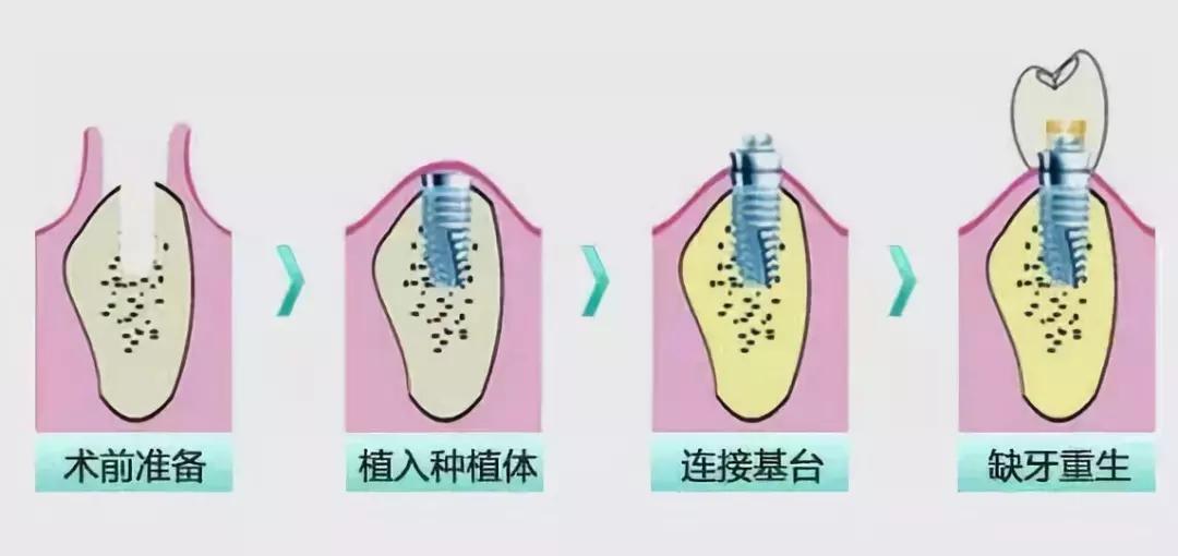 ,但是,什么是即刻种植牙呢? 什么是即刻种植牙? 种植牙按照植入时机分为延期种植牙和即刻种植牙两种,即刻种植是患者在拔牙后休息半小时就可以进行种植了,研究及实验证明即刻种植的效果不比延期种植的效果差。 种植是一种以缺牙处骨质植入的钛钉为固位基础,上方连接牙修复体的修复方式。由于其高度模拟天然牙,且不伤害缺牙两边的牙齿,种植修复的方式非常受推崇。 很多情况下,牙并不会自然而然的脱落,通常一些患者由于牙病去医院寻求时会被告知牙保不住了,此时还有牙根残留,需要拔除后再修复。传统种植手术通常在在拔牙后3个月,软组