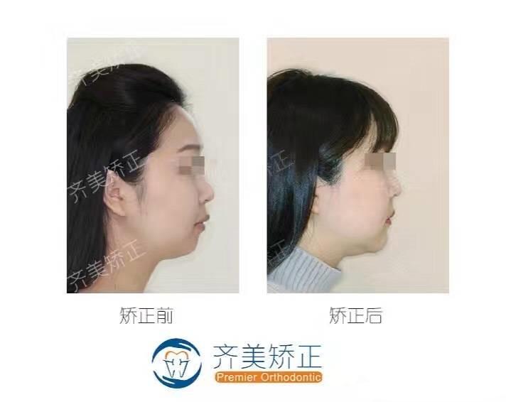 成人骨性地包天(反颌)图片
