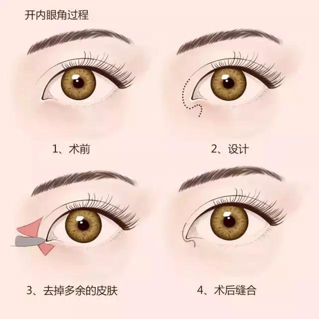 眼综合_眼综合,全方位打造魅惑双眼