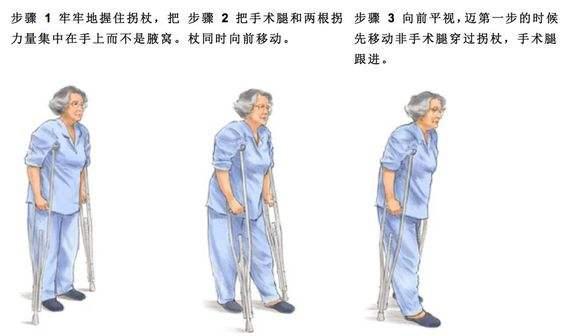 髋关节术后锻炼6.jpg