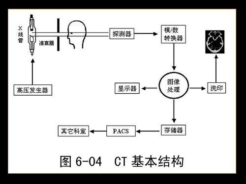 陈谦主任科普之CT检查