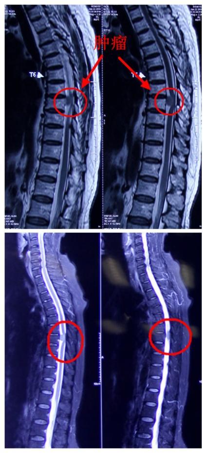 病例:手术治愈胸椎管内脊膜瘤一例