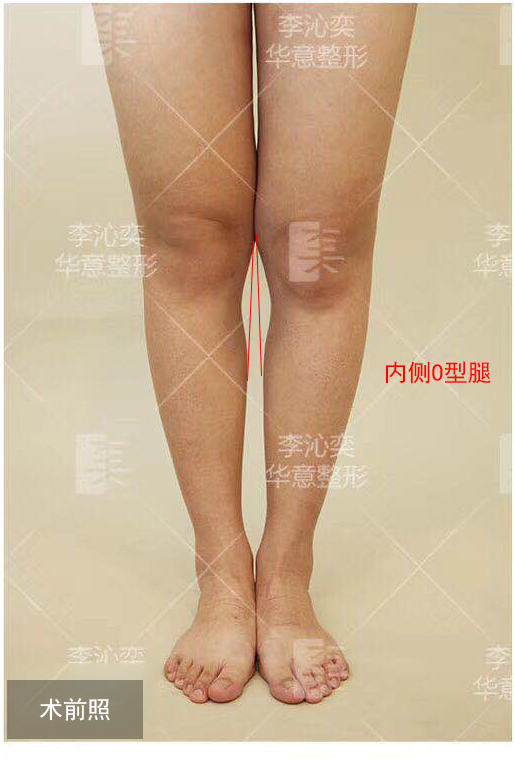 自体脂肪填充矫正O型腿术后腿会变粗吗?