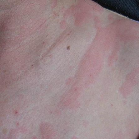 蕁 麻疹 性病