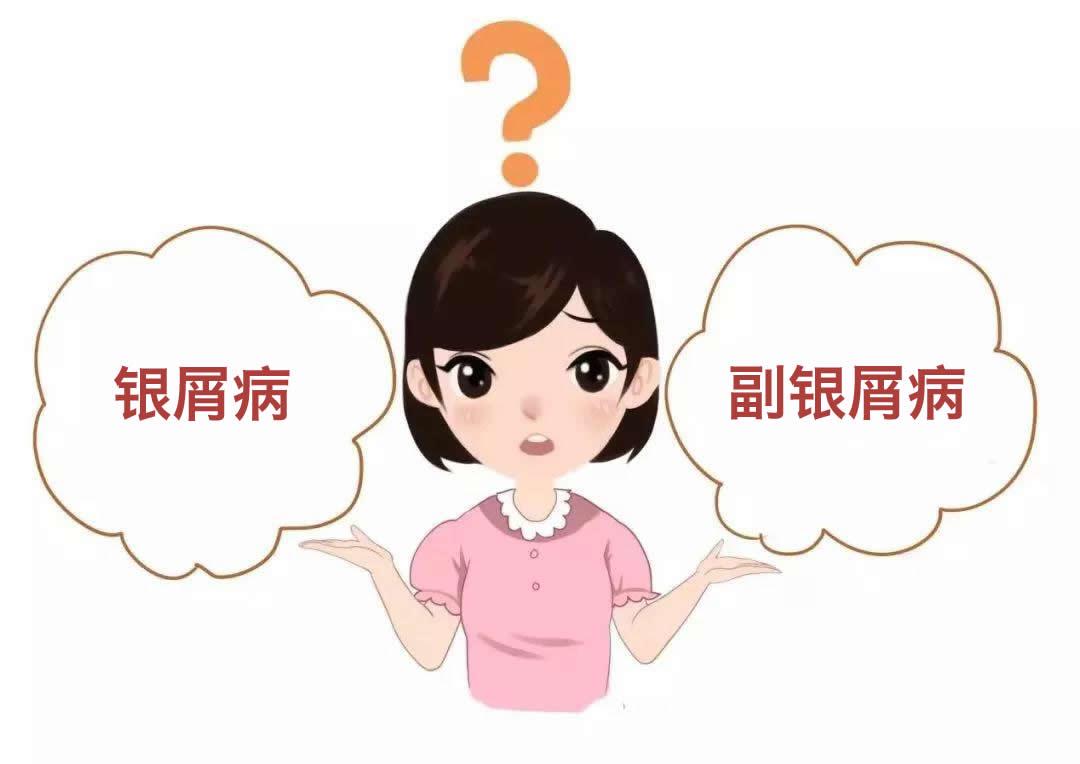 副银屑病跟银屑病有什么区别?确诊后该怎么办?