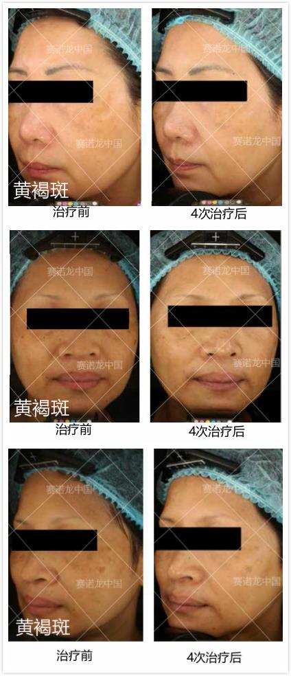 黄褐斑 治疗对比图.jpg