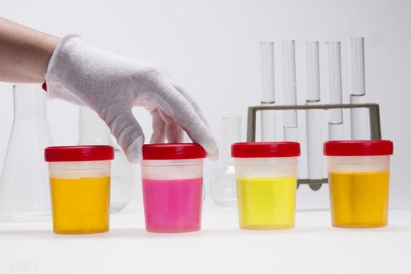 不做穿刺,看尿液变化如何识别肾病类型?