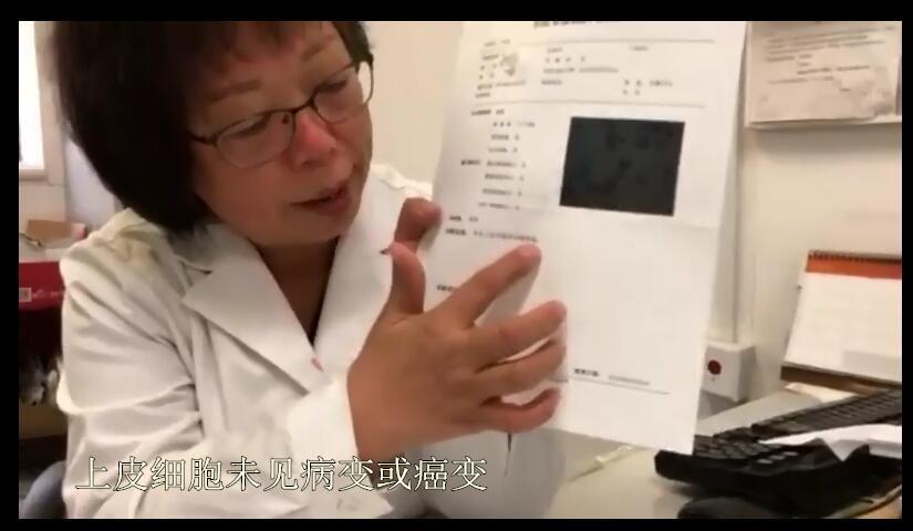 2轻度炎症未见病变或癌变_副本.jpg