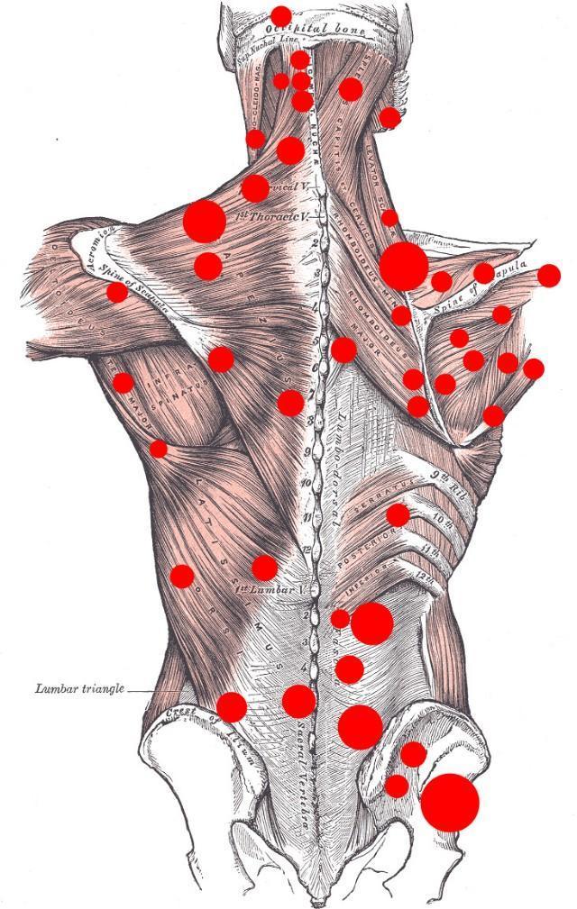 久坐后腰痛难忍,不敢直腰,活动一会儿还能好转,这是啥情况?