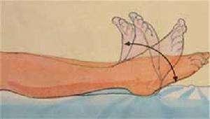 膝关节术后锻炼).jpg