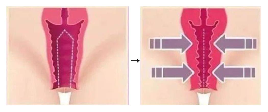 【阴道松弛全解】(八)3D生物束带阴道紧缩术可以维持终生?