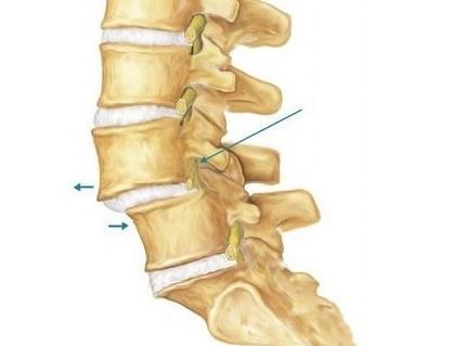 腰椎滑脱如何识别?该怎么治疗?