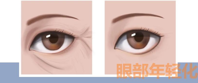 提眉后为何眼睛不自然的原因?