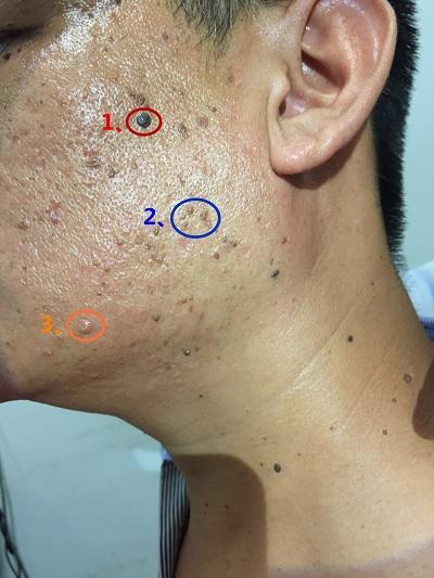 都是脸上的小痘痘,都是什么你知道吗?