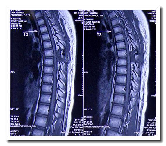 病例:胸7椎管内表皮样囊肿一例
