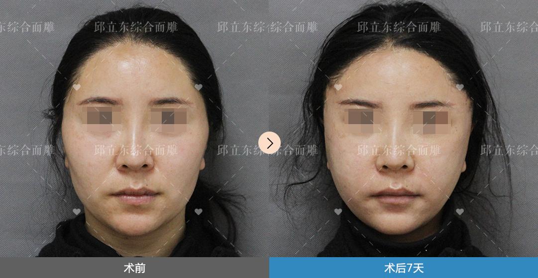 来做面部轮廓手术的,都是不愿也不想向现实妥协的人