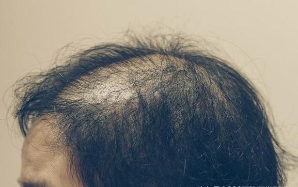 治疗脱发最有效的方法是什么?这些问题需牢记!