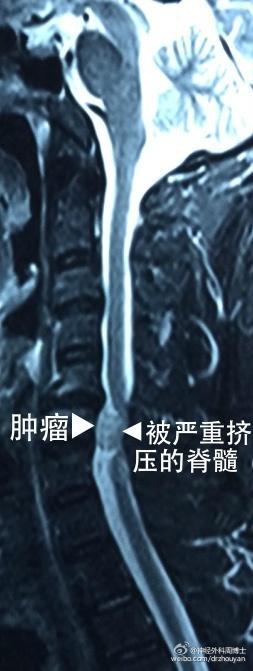 """""""腿麻""""不都是腰椎间盘突出的事 不要忘了肿瘤"""
