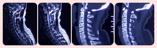病例:ACDF手术治愈颈椎间盘突出一例