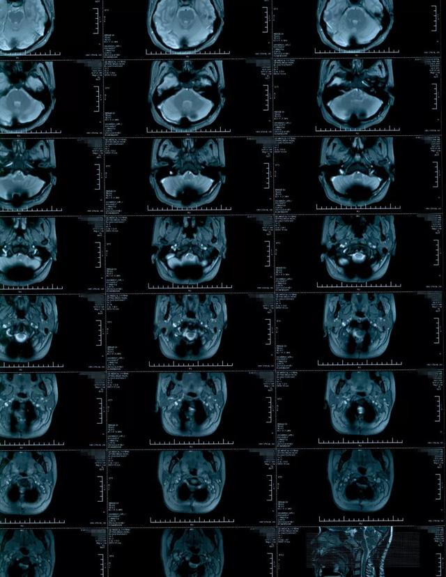 音频病例点评:脊髓空洞症