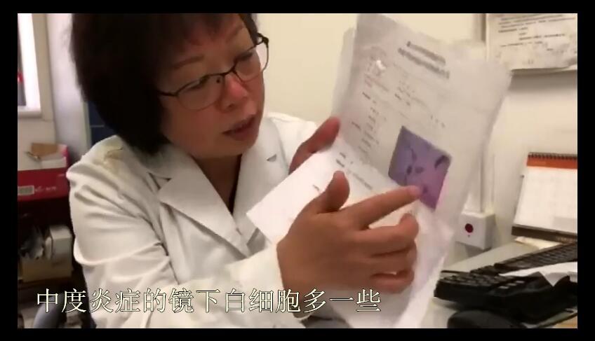 4中度炎症,镜下白细胞多_副本.jpg
