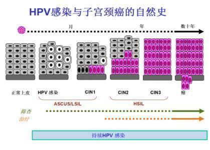 人体性行为_从HPV感染到宫颈癌都经历了什么?_医生说_39健康网
