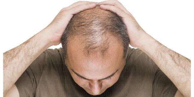 头顶脱发还能长出来吗?用什么能生发?