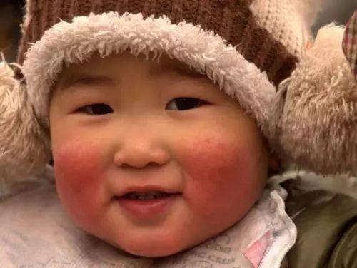 干货必收藏|秋冬季让宝宝远离红脸蛋、烂嘴角、流鼻血的小秘