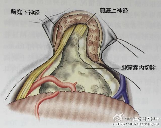 详解手术全过程 更好的了解疾病 听神经瘤