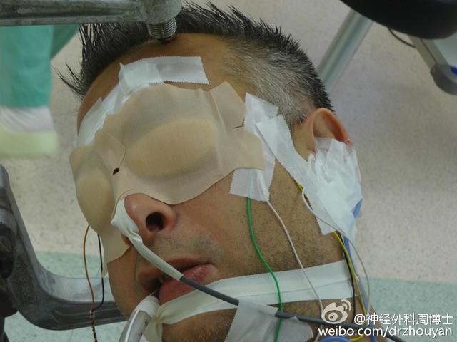 图解手术 更好的了解疾病 电生理监测提高面肌痉挛手术效果
