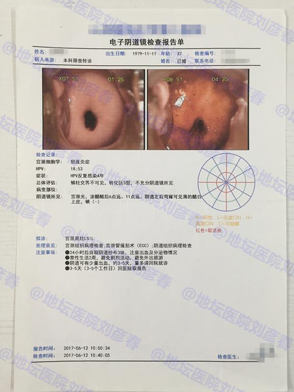 病例分享——宫颈锥切后CIN1级病变,阴道VaIN1级病变