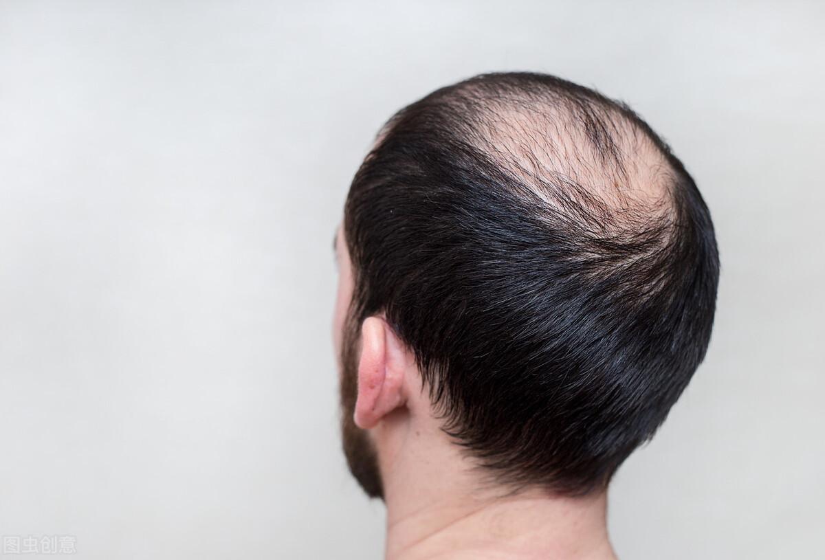脂溢性脱发怎么治疗最有效?一个更有效的方法!