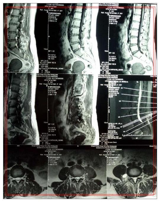 椎管内海绵状血管瘤都要手术吗?