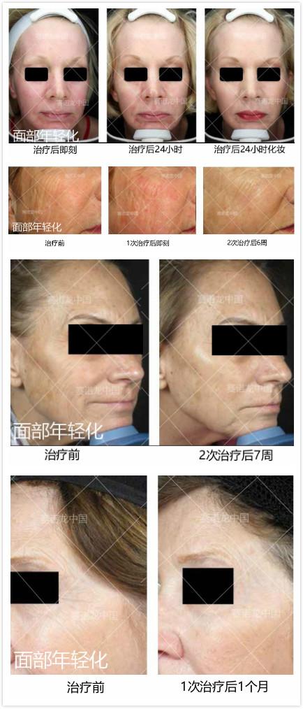 面部年轻化 治疗对比图.jpg