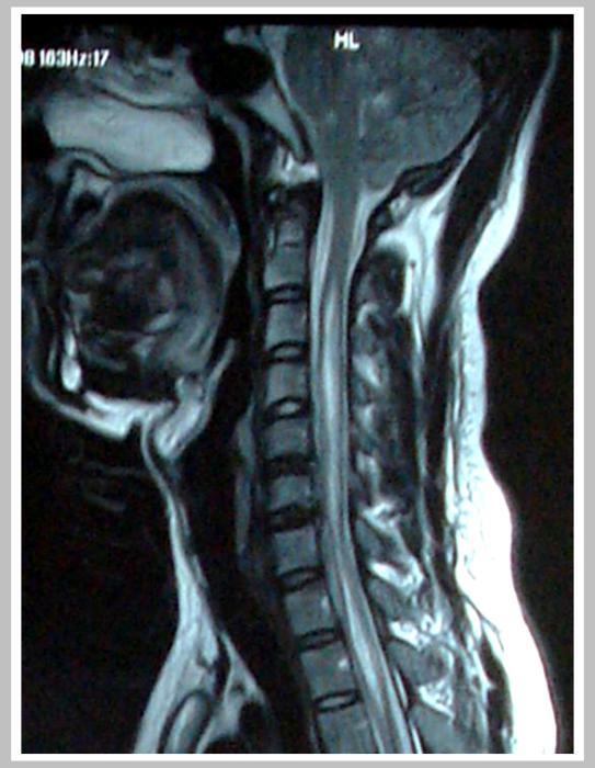 小脑扁桃体下疝伴脊髓空洞一定要手术吗?